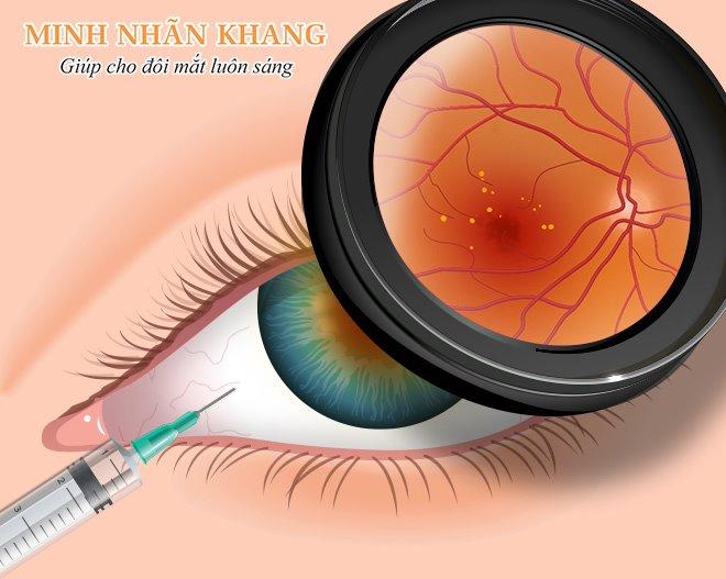 Cách điều trị thoái hóa điểm vàng thể ướt bằng tiêm thuốc ức chế tăng sinh tân mạch